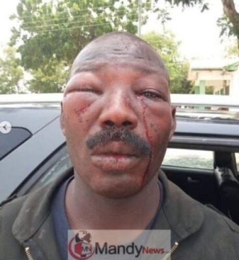5cd14d6e6113f See What Angry Ghanaians Did To A Police Officer (Photos)