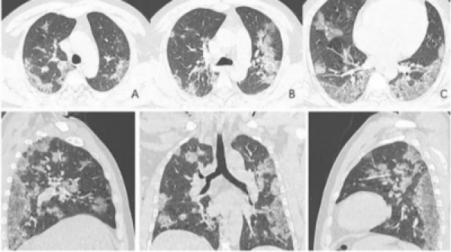 X-Ray Images Show The Damage Coronavirus Can Do To Lungs