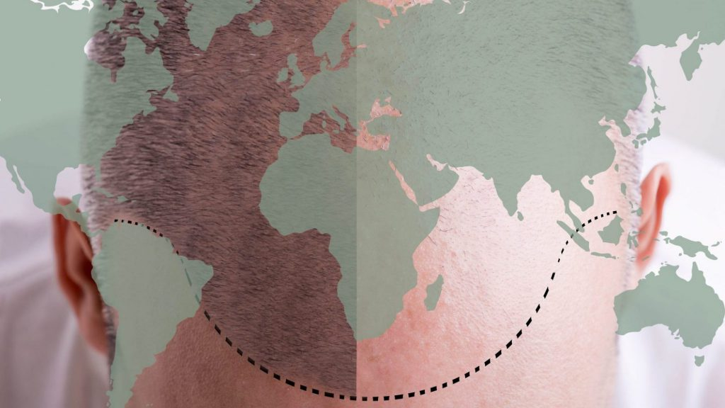 hair transplant abroad - cost