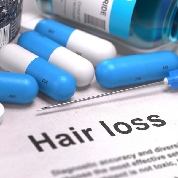 Unusual Hair Loss Treatments That Work!