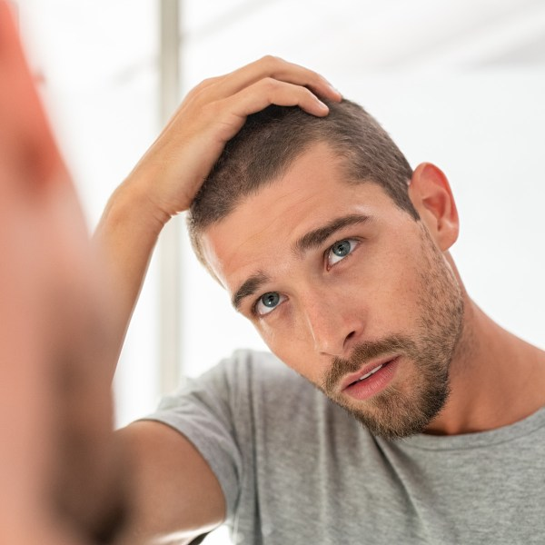 best-hair-loss-treatments-explained-man-for-himself-ft