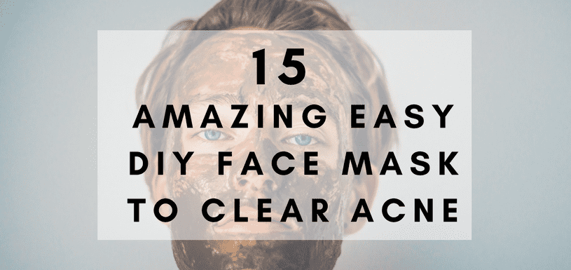 15 amazing easy diy face mask to clear acne