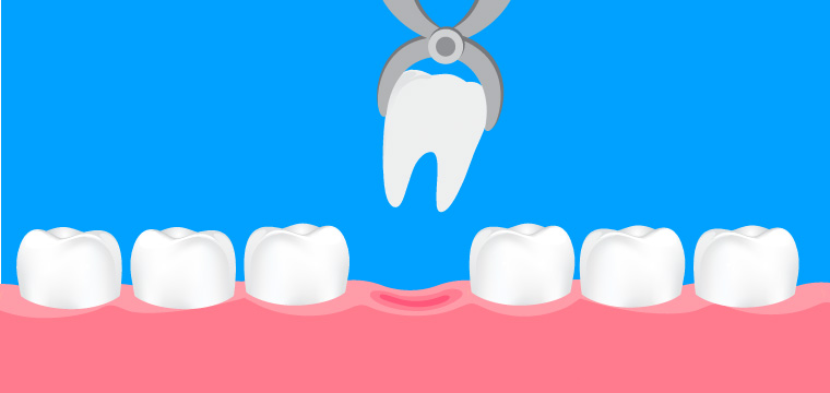 extractions Archives - Manhattan Bridge Orthodontics