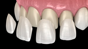 Veneer installation procedure over central incisor and lateral incisor.