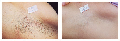 laser hair removal nyc manhattan spa before after 07 1