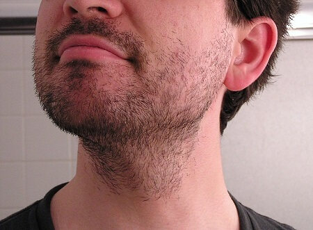 Beard Stubble may be itchy