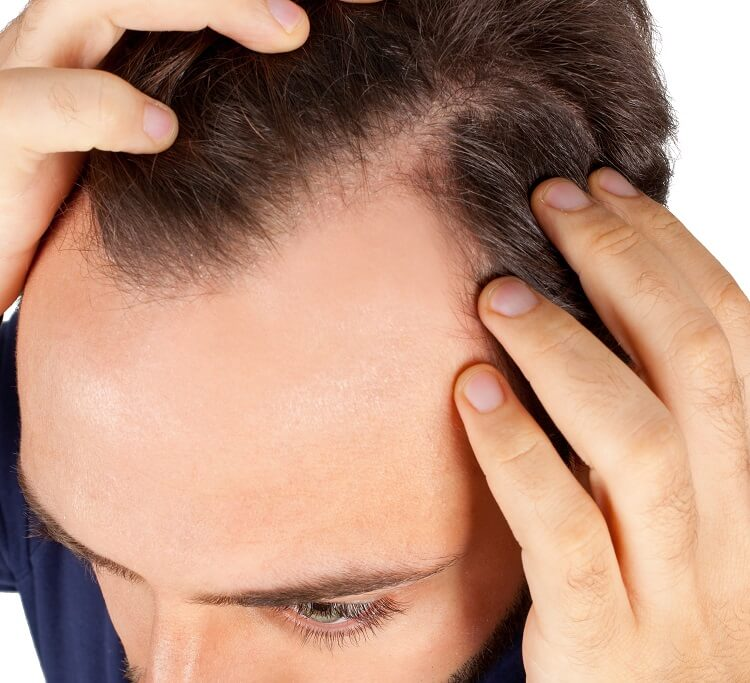 How to prevent hair loss and what is causing it