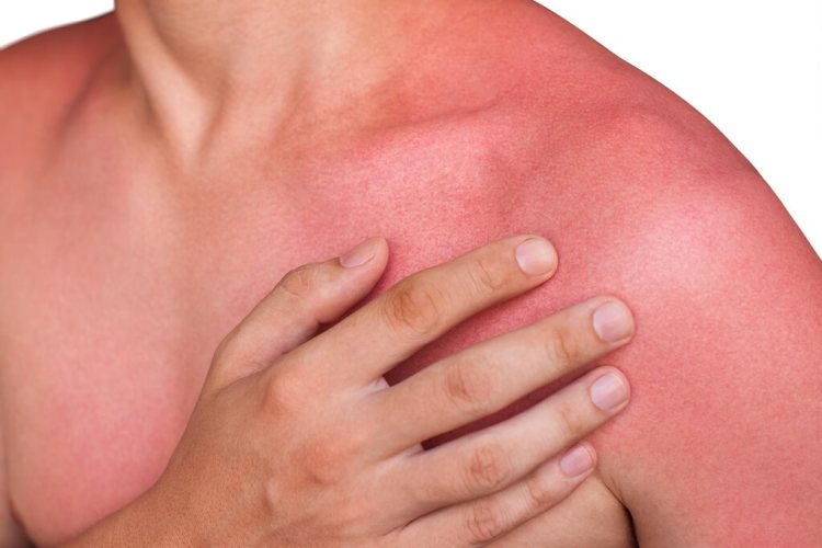 Why use a sunscreen or sunblock