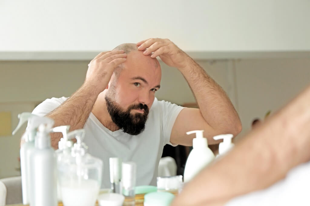 Ways to prevent baldness
