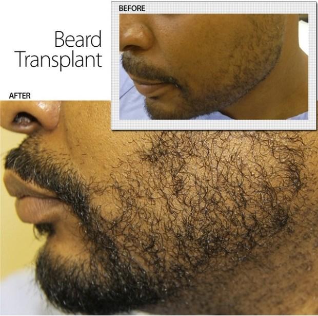 2015-3-30-beard-transplant