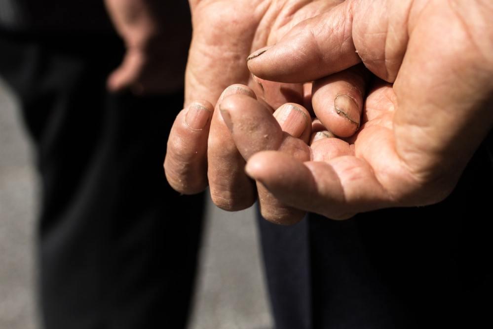dirty fingernails in nigerian men dusgust nigerian women
