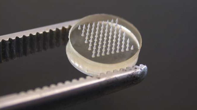 What Are Microneedles And Why Do We Need Them?
