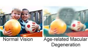 What Is Age-Related Macular Degeneration?