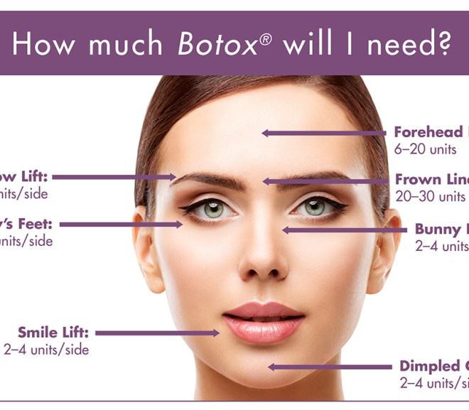 Botox – Typical Neuromuscular Modulator