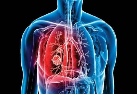 ما هو مرض السل؛ أعراض مرض السل