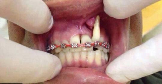 Pda released a public notice concerning diy braces manubay blog pda released a public notice concerning diy braces solutioingenieria Images