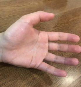 手汗 治す方法