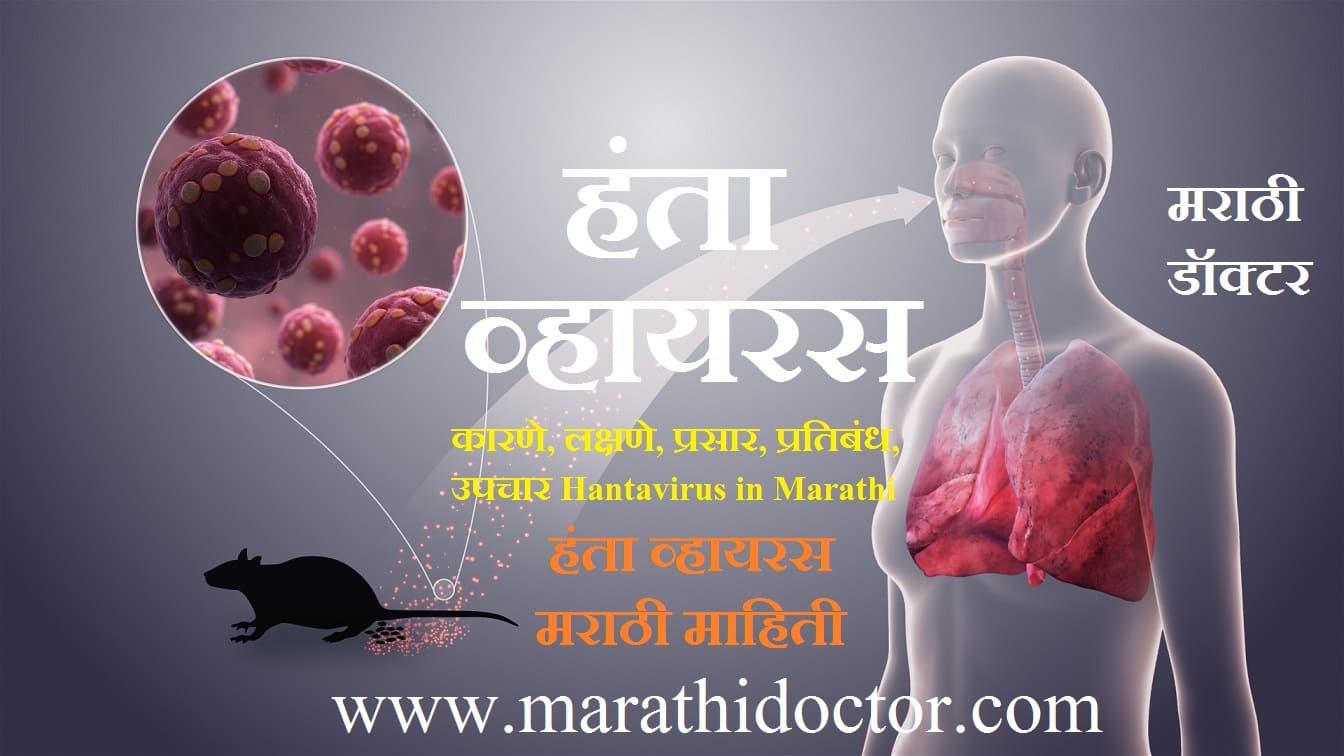 Hantavirus in Marathi, What is Hantavirus in Marathi, Hantavirus information in Marathi, Hantavirus Meaning in Marathi, Hantavirus Causes in Marathi, Hantavirus Symptoms in Marathi, Hantavirus Pulmonary Syndrome in Marathi, Hemorrhagic Fever With Renal Syndrome in Marathi, Hantavirus Spread in Marathi, Hantavirus Diagnosis in Marathi, Hantavirus Treatment in Marathi, हंता व्हायरस कारणे, हंता व्हायरस लक्षणे, हंता व्हायरस प्रसार, हंता व्हायरस प्रतिबंध, हंता व्हायरस उपचार