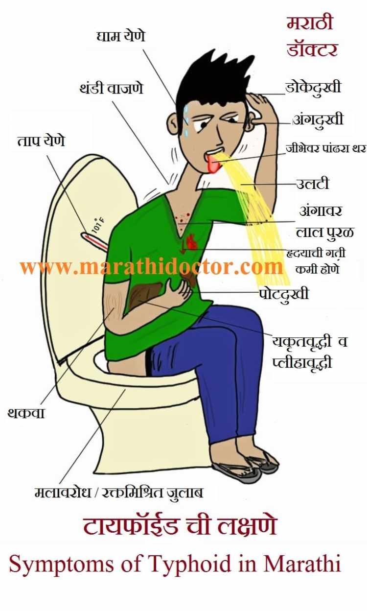 Typhoid in Marathi, Symptoms of Typhoid in Marathi, Typhoid symptoms in Marathi, Typhoid Fever in Marathi, Typhoid lakshan in Marathi, Typhoid diet in Marathi, Typhoid Marathi meaning, Typhoid Fever symptoms in Marathi, Typhoid upay in Marathi, Typhoid reasons in Marathi, Typhoid Fever information in Marathi, Typhoid Fever definition in Marathi, Typhoid Fever Marathi meaning, Typhoid Fever treatment in Marathi, टायफॉईड विडाल टेस्ट, Widal test for Typhoid in Marathi, टायफॉईड कारणे, टायफॉईड लक्षणे, टायफॉईड प्रतिबंध, टायफॉईड लस, टायफॉईड उपचार, विषमज्वर,