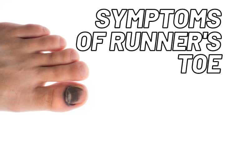 what is runner's toe