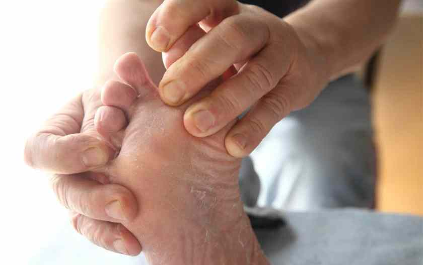 runners feet athlete's foot