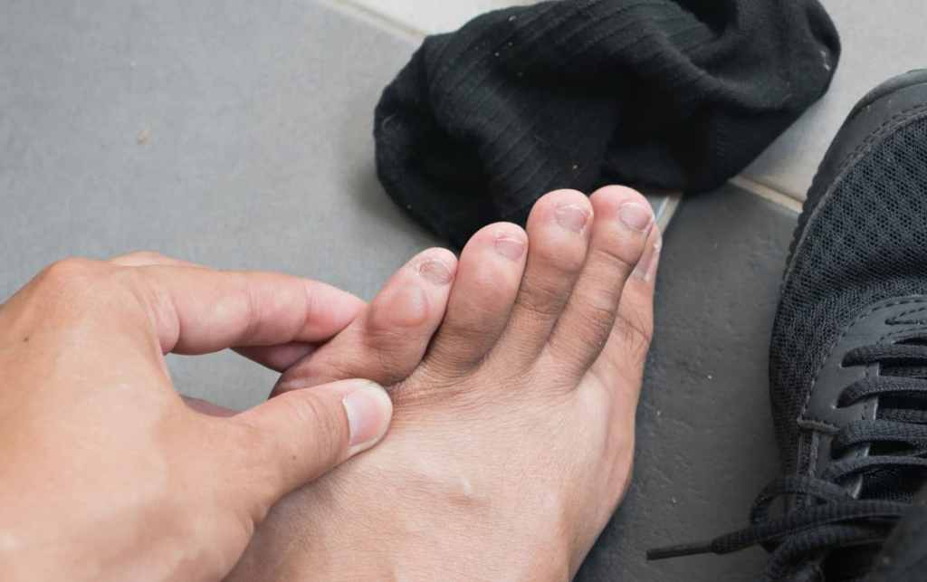 Runner's Feet: The 5 Most Common  Injuries, and Foot Care For Runners 1