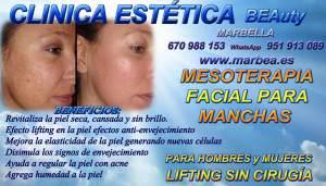 La MESOTERAPIA FACIAL PARA MANCHAS facial es una técnica de rejuvenecimiento no agresivo, indicada para el tratamiento del Acné, que hidrata la piel en profundidad, estimula la producción de colágeno