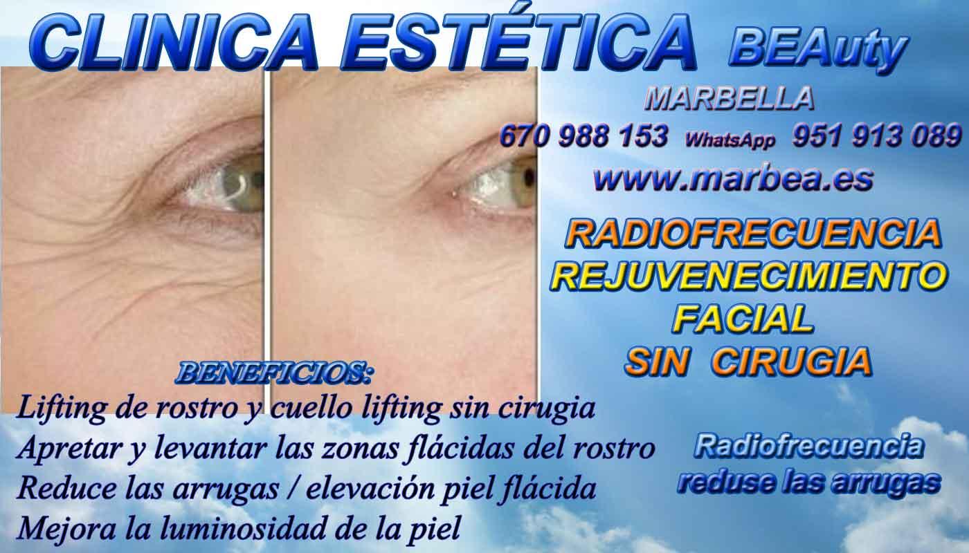 CLINICA ESTETICA MARBELLA ofrece RADIOFRECUENCIA FACIAL en MARBELLA . Radiofrecuencia en el tratamiento para eliminar