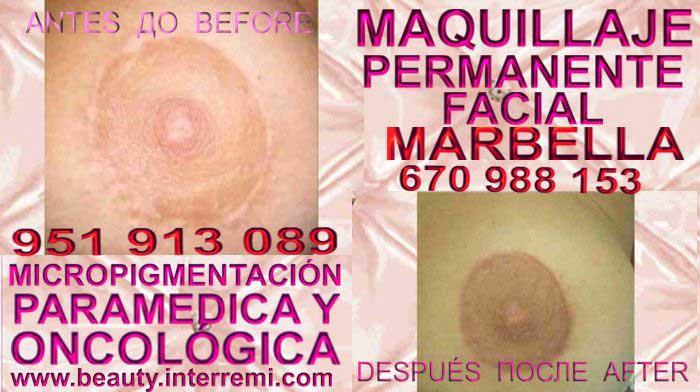 CLINICA ESTÉTICA MARBELLA OFRECE: SERVICIO AUMENTO DE SENOS ,REDUCCION DE SENOS ,AUMENTO DE PECHO ,AUMENTO DE SENOS ,REDUCCION DE SENOS, MICROPIGMENTACIÓN MÉDICA CICATRICES, CONOCIDO COMO MAQUILLAJE PERMANENTE CICATRICES MAMARIA