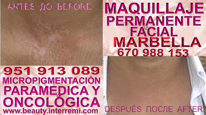 Micropigmentación Vitiligo en la clínica estetica propone Tratamiento Vitiligo OR Vitiligo Maquillaje Permanente Tratamiento Vitiligo Vitiligo