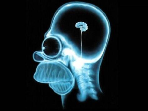 Cervello di Homer - fonte - Internet