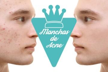 Como eliminar manchas de acne do rosto