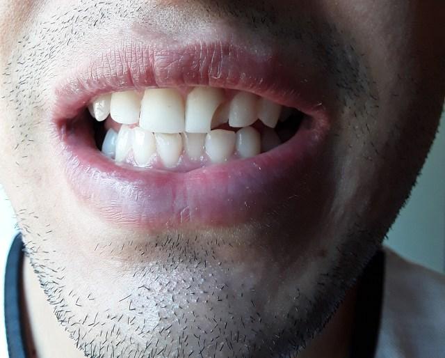 Resultado da faceta de resina nos dentes