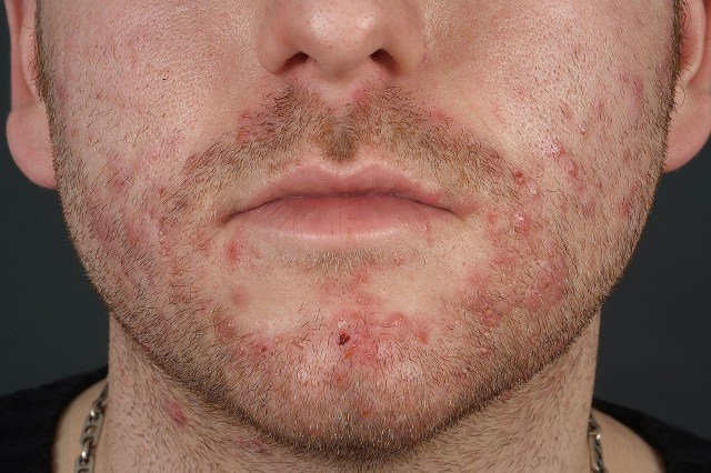 Foliculite da barba pseudofoliculite