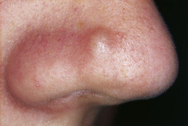 Acne interna ou acne nodular