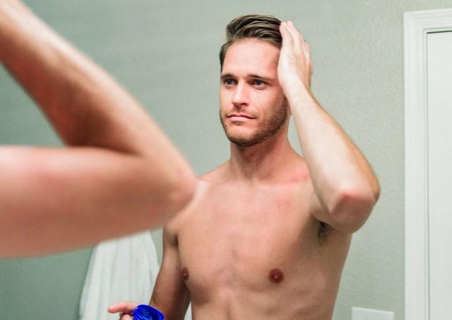 Calvície: queda de cabelo masculino