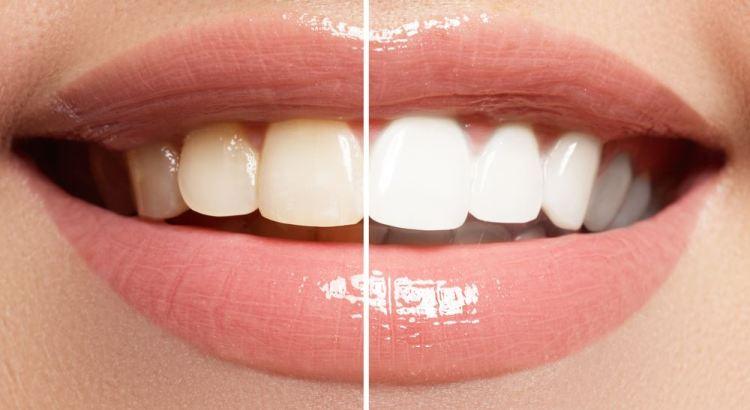 Dentes Escuros Apos Tratamento De Canal Como Clarea Los Marco De