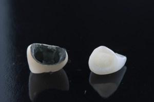 metaloceramica porcelana pura