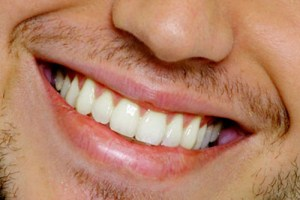 sorriso masculino