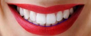 arco do sorriso