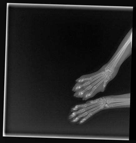 x-ray sunny 12-3-2017