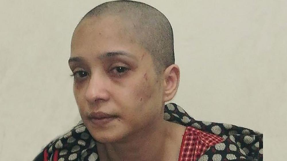 नाच्न नमानेको आरोपमा पाकिस्तानमा पतिले खौरिदिए पत्नीको कपाल