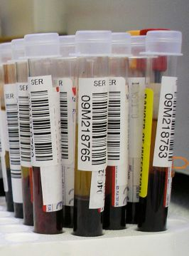 genetic testing, blood test, genetics , faith, Catholic