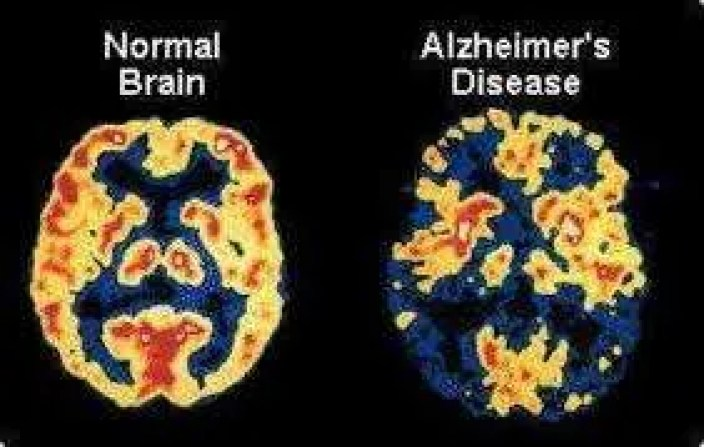 Alzheimer - High Levels of Sugar and Insomnia Associate with the Alzheimer.