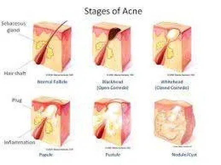 Stages of Acne