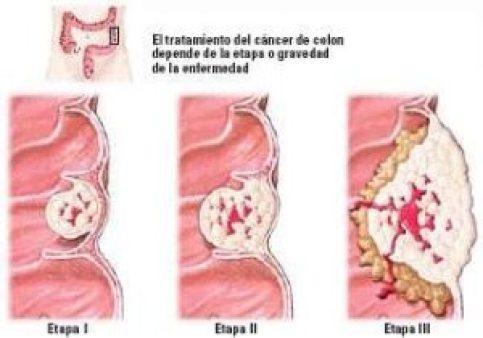 STADIOSCOLON 300x210 - Familial Adenomatous Polyposis is Close to Colon Cancer.