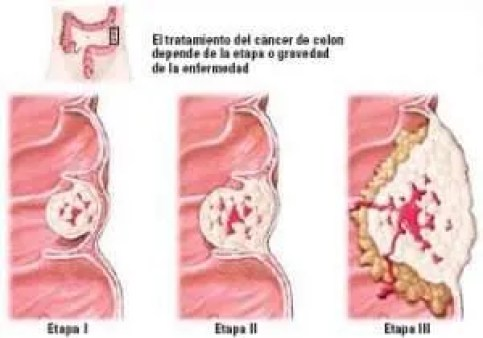 Cancer Colon Stages