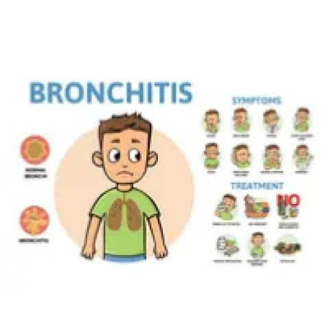 Stages from Bronchitis.