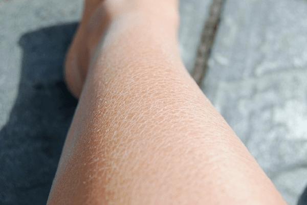 Lutter Contre La Peau Sche Sur Nos Gambettes