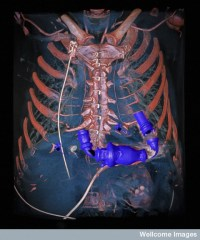Bomba cardíaca mecánica en el tórax, DECT